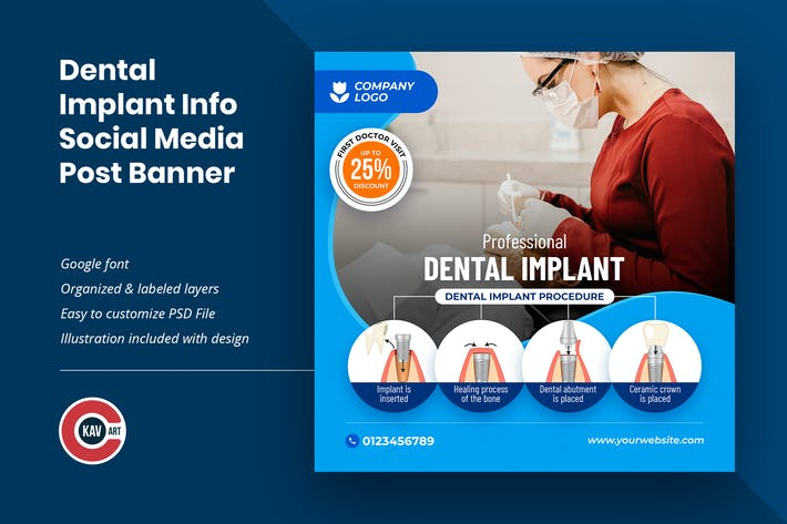 Dental Implant Info Social Media Post Banner