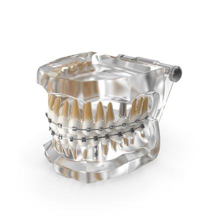 Transparent Dental Typodont With Bracket and Dental Implants