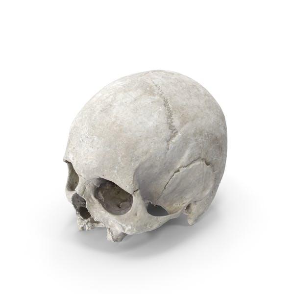 Череп черепа человека с проказой