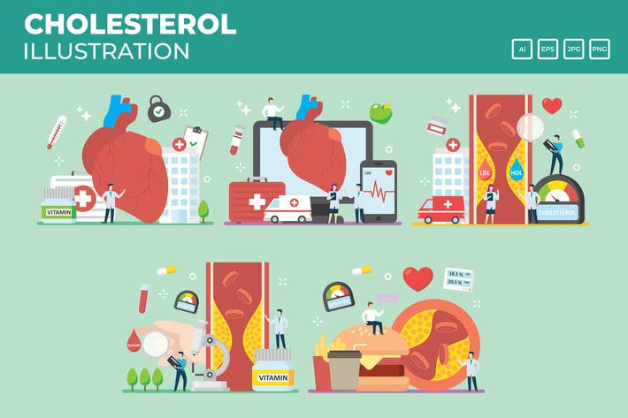Thumbnail for Cholesterol, Blood pressure illustration