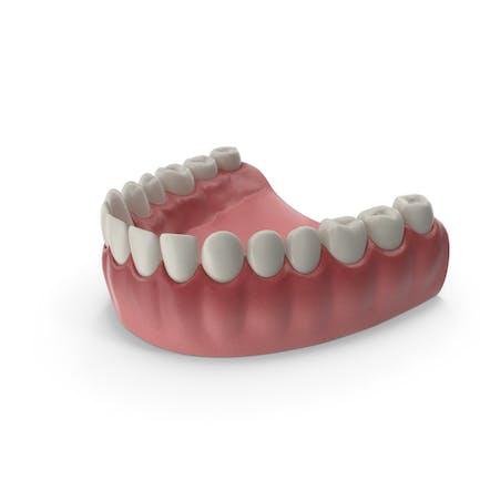 Lower Teeth Medical Model With Dental Implant