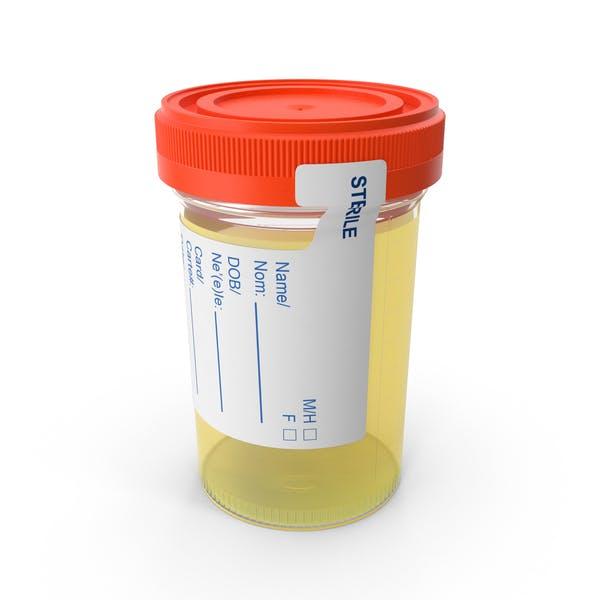 Thumbnail for Urine Sample