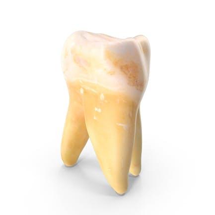 Mordaza superior del molar derecho