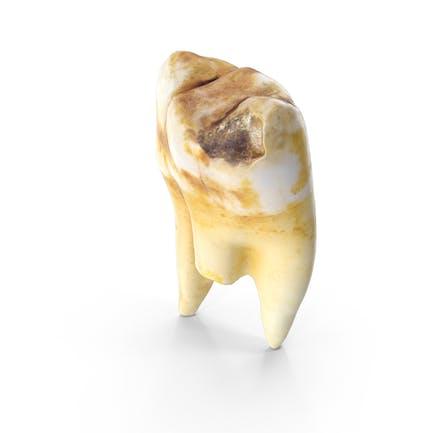 Molar izquierdo roto con cavidad maxilar superior