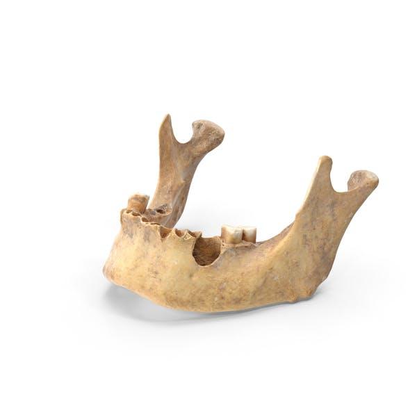 Thumbnail for Human Jawbone