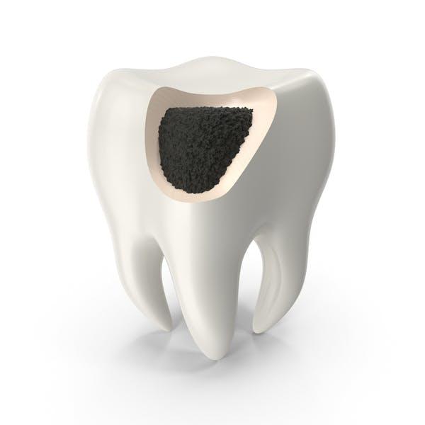 Кариес поврежден зуб