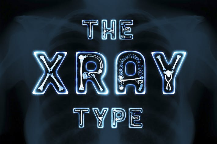 Thumbnail for The X-Ray Type