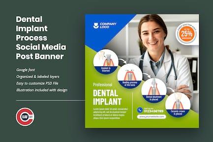 Dental Implant Process Social Media Post Template