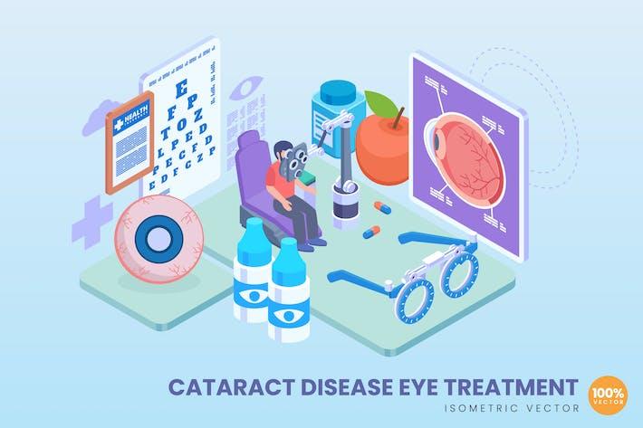 Thumbnail for Концепция лечения заболеваний глаз изометрической катаракты