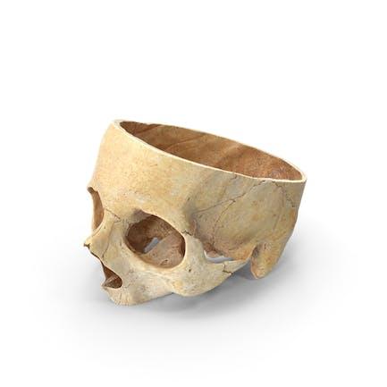 Corte craneal humano