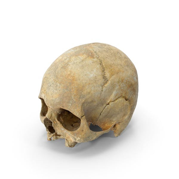Thumbnail for Human Skull Cranium with Leprosy