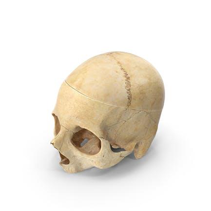 Cráneo humano con pieza cortada