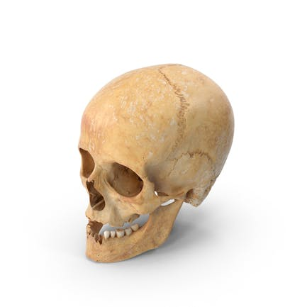 Cráneo femenino humano dañado