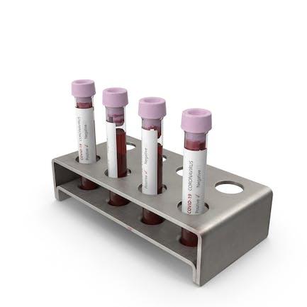 Muestras de sangre de coronavirus positivo