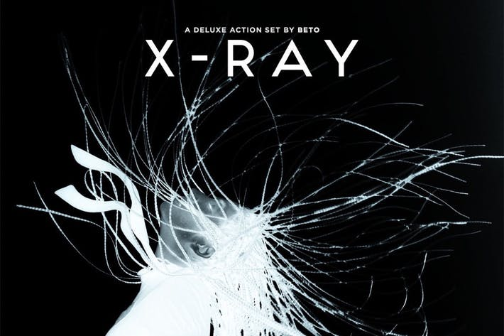 Thumbnail for X-Ray Action