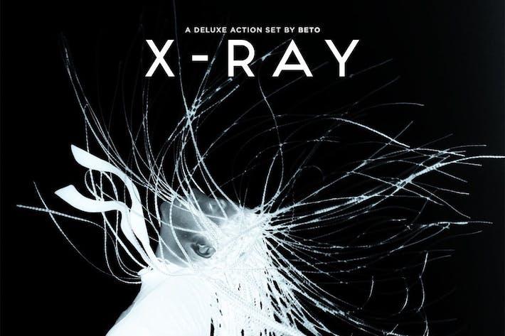Thumbnail for Acción de rayos X