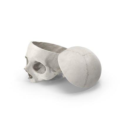 Corte de calavera humana con pieza blanca
