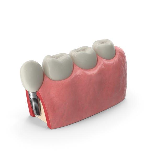 Модель зубного имплантата образования