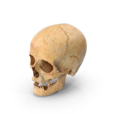 Damaged Human Female Skull
