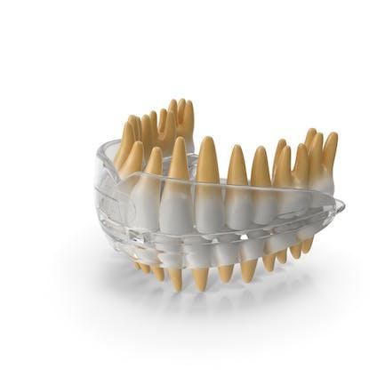 Retenedor dental de ortodoncia dental
