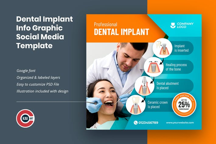 Dental Implant Info Graphic Social Media Template